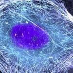 Cancro al polmone: consumo di zucchero e tumore, scoperta una relazione