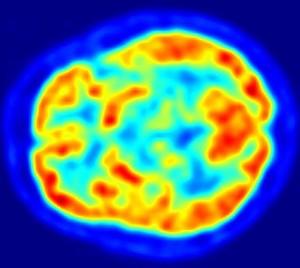 Stimolate le cellule a stella nel cervello