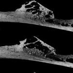 Scoperto il più antico tumore osseo in un Neanderthal di 120mila anni fa