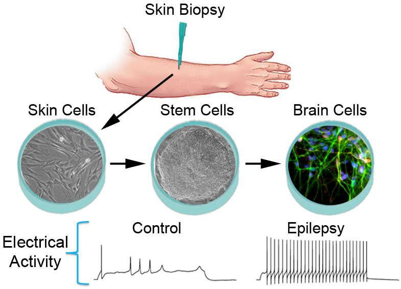 Sindrome di Dravet, epilessia