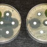 Scoperta una molecola contro i batteri resistenti agli antibiotici