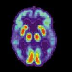 Nel nostro intestino una cura contro l'Alzheimer?