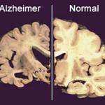 Alzheimer: un progetto internazionale ne studia le origini genetiche