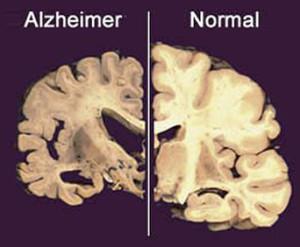 Alzheimer: studio sulla sindrome di Down può aiutare a capire la malattia