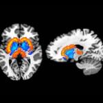 Una alterazione della dopamina alla base dell'obesità