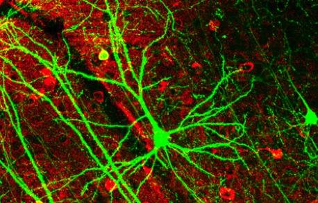 Neuroni_nel cervello_dei_topi