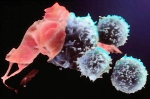 Coloured SEM of T-cells attacking a cancer cell