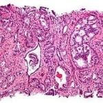 Cancro, immunoterapia e radioterapia insieme per risultati più efficaci