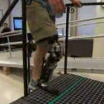 Prima gamba bionica collegata con il cervello