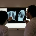 Patologie reumatiche, in 13 anni enormi passi avanti nella diagnosi