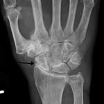 Artrite e patologie reumatoidi costano quanto l'IMU