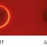 Come combattere le infezioni batteriche sopprimendo una proteina chiave