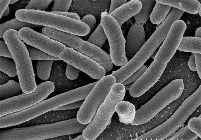 Batteri di E. Coli al microscopio elettronico