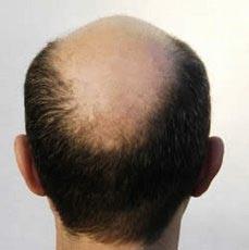 Perché i capelli lanalisi di capelli abbandonano