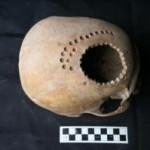 Antica chirurgia cranica: trapanazioni di migliaia di anni fa