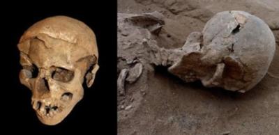 cranio-preistorico-lesioni