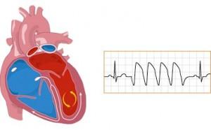 Lo stress causa patologie cardiache differenti tra uomini e donne