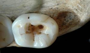 Trattamenti odontoiatrici nel Paleolitico