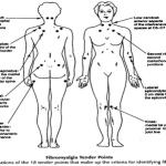 E' il sistema nervoso centrale il punto di origine della fibromialgia?