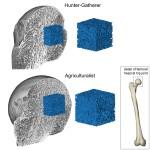 Fragilità delle ossa umane risultato evolutivo della ridotta attività fisica