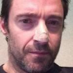 Carcinoma basocellulare, attore di Wolverine invita all'uso della crema solare