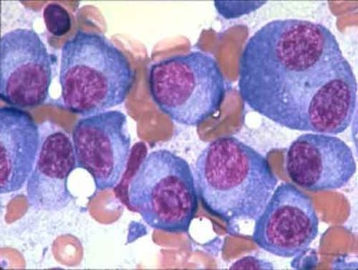 multiple-myeloma