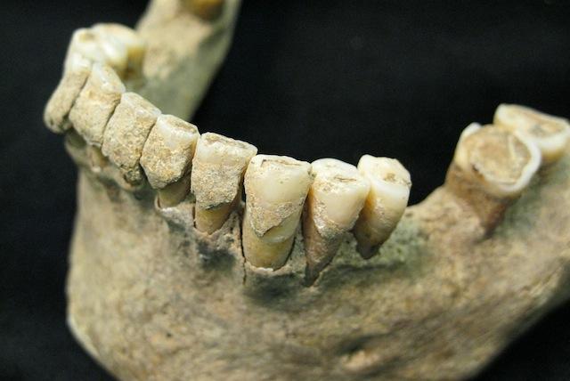Placca dentaria sui denti di un uomo di mezza età del sito medievale di Dalheim, Germania, ca. AD 1100. Crediti: Christina Warinner.