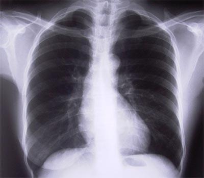 Radiografia ai polmoni