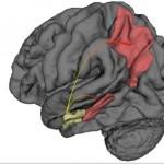 Alzheimer: nuovo studio mostra dove inizia il morbo e come si diffonde