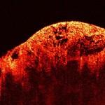Isolate cellule staminali di leiomiosarcoma